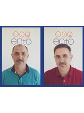 ENTO Medical Center Hair Transplant Clinic - Before-After