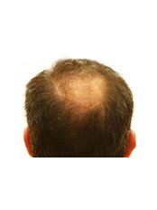 Treatment forMale Pattern Baldness - The Hair Consultancy