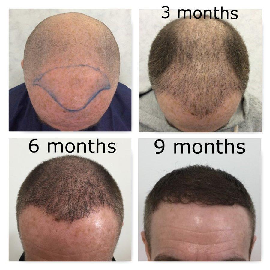 Natural Transplants Hair Restoration Clinic Reviews