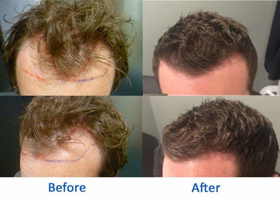 Better Hair Transplant Clinics - Bury