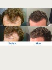 Better Hair Transplant Clinics - Manchester - 132-134 Great Ancoats Street, Manchester, M4 6DE,