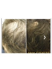 Hair Transplant - The Stockport Hair Loss Clinic