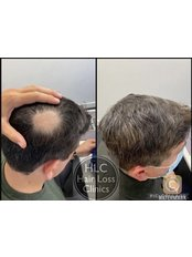 Bald Spot Removal - The Stockport Hair Loss Clinic