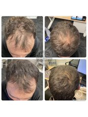 Hair Loss Specialist Consultation - The Stockport Hair Loss Clinic