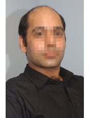 Treatment forMale Pattern Baldness - The Stockport Hair Loss Clinic