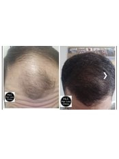 FUE - Follicular Unit Extraction - The Stockport Hair Loss Clinic