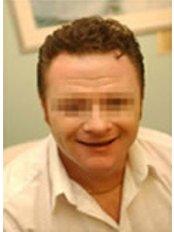 Hair Loss Treatment - The Stockport Hair Loss Clinic
