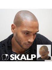 Scalp Micro Pigmentation (Receding Hairline) - Skalp - Manchester