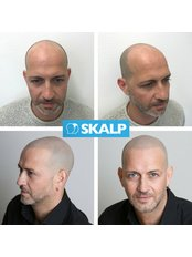 Hair Loss Treatment for thinning hair and male pattern baldness - Skalp - Manchester