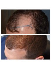 Better Hair Transplant Clinics - Manchester - image 0