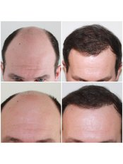 Capital Hair Restoration - Kent - Male Hair Transplant