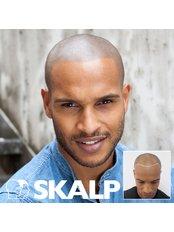 Scalp Micro Pigmentation (Receding Hairline) - Skalp - Edinburgh