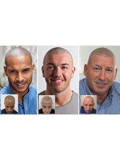 Hair Loss Treatment for thinning hair and male pattern baldness - Skalp - Edinburgh