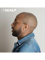 Alopecia Treatment (Full Head) - Skalp - Edinburgh