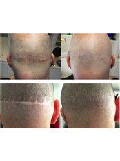 Hair Transplant Scar Camouflage  (Scar Coverage) - Skalp - Edinburgh