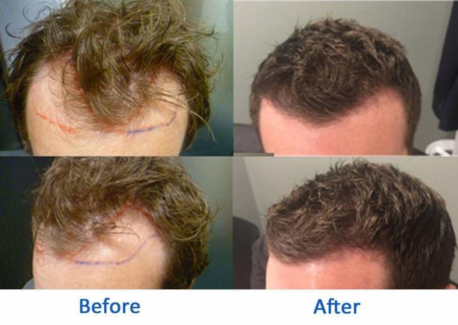 Better Hair Transplant Clinics - Nottingham
