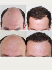 Capital Hair Restoration - Surrey - Male Hair Transplant