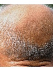 Natural Treatment for Male Pattern Baldness - New Man Clinic