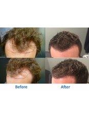 Better Hair Transplant Clinics - Leeds - Princes Exchange, Princes Square, Leeds, LS1 4HY,  0