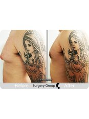 Surgery Group Ltd Leeds - Gynecomastia surgery before and after