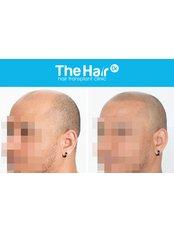 Scalp Micropigmentation - The Hair Dr