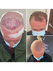 FUE Hair Transplants - Yorkshire Hair Replacement Clinic