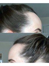 Female Hairline Lowering - Surgery Group Bromsgrove