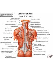 Dry Needling - Bodyworks Physical Therapy