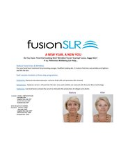 Laser Wrinkle Reduction - Philtronics Wellbeing: Skin, face and body