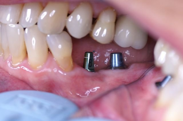 En Bloc Dental Clinic Implant Dentist In Panchkula