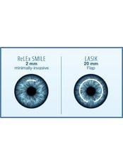 SMILE Eye Surgery - Mahajan Eye Centre