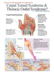 Repetitive Strain Injury Treatment - Energise Therapy,Sports Injury and Shockwave Therapy Clinic