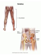 Sciatica Treatment - Energise Therapy,Sports Injury and Shockwave Therapy Clinic