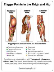 Trigger Point Therapy - Energise Therapy,Sports Injury and Shockwave Therapy Clinic