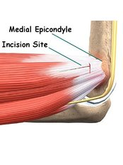 Tendonitis Treatment - Energise Therapy,Sports Injury and Shockwave Therapy Clinic