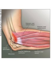 Tennis Elbow - Energise Therapy,Sports Injury and Shockwave Therapy Clinic