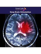 DBS - Deep Brain Stimulation - Travcure Medical Tourism Consultants- New Delhi