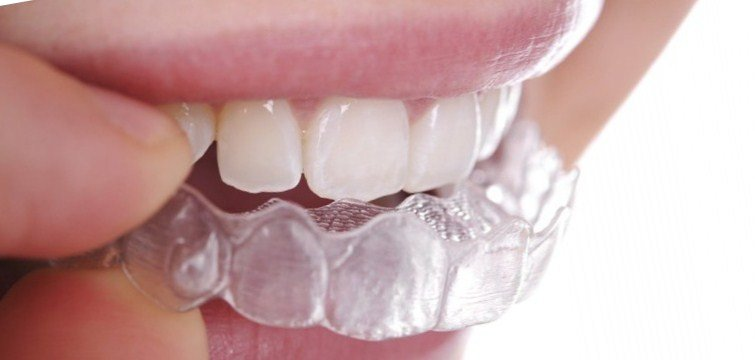 Smile Architect Invisible Braces Center Orthodontist In