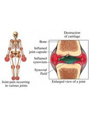 Rheumatoid Arthritis Treatment - Bangalore Spine Care Super Speciality Clinic and Research Centre