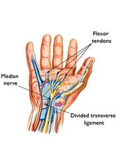 Carpal Tunnel Surgery - Isomer