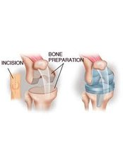 Knee Replacement - Isomer