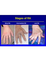 Rheumatoid Arthritis Treatment - Isomer