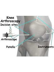 Knee Arthroscopic Washout - Isomer