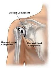 Shoulder Replacement - Isomer