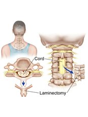 Laminectomy - Isomer