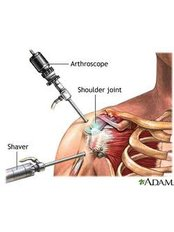 Rotator Cuff Repair - Isomer