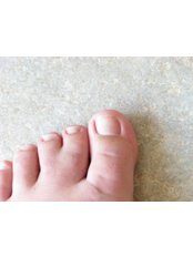 Webbed Toes Surgery - Isomer