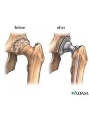 Joint Replacement Surgery - Isomer