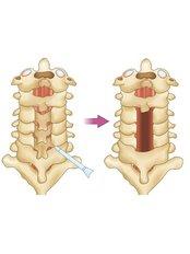 Laminectomy - Orthopaedic Surgery India