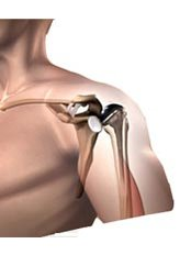 Shoulder Replacement - Orthopaedic Surgery India